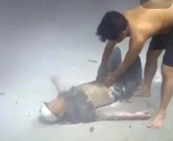 Võ Minh Tuấn bị bỏng nặng. Ảnh: N.R.