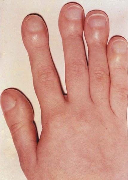 Hiện tượng ngón tay dùi trống là dấu hiệu tiền ung thư.