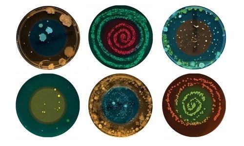 Đây là hình ảnh mô tả 1 số loại vi khuẩn có trong rốn.