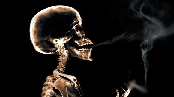 Cứ 10 trường hợp ung thư phổi thì sẽ có 9 trường hợp liên quan đến khói thuốc lá.