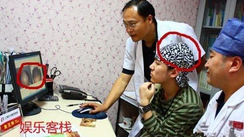 Hình ảnh khi Trí Siêu đến viện kiểm tra trước ca phẫu thuật vài năm trước. Có thể thấy vùng da đầu của anh bị tổn thương nặng. Ảnh: Baidu.