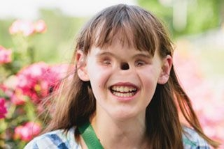 khuyết tật