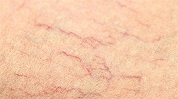 9 vấn đề về da này là thủ phạm khiến bạn bớt đẹp, hãy loại bỏ nó ngay!