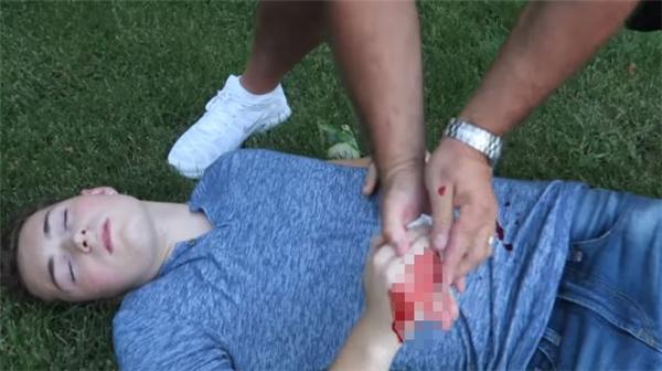 Thậm chí Lance còn bất tỉnh tại chỗ khiến bạn bè vô cùng hốt hoảng.