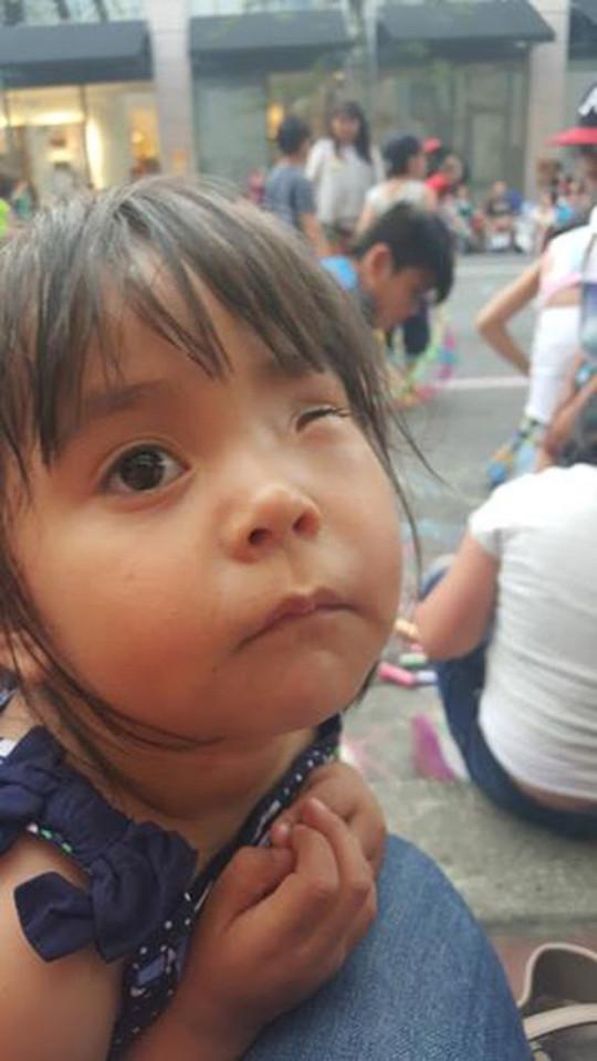 Kimberley bị mất một con mắt do ảnh hưởng của khối u.