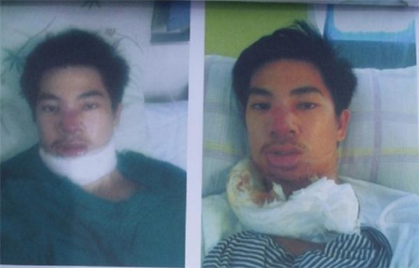 Chàng trai nhận cái kết cay đắng vì trót phẫu thuật thẩm mĩ giá bèo