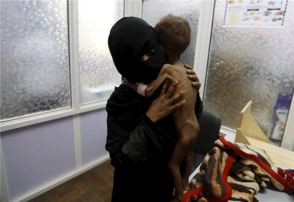 Cậu béMajed Ayyash21 tháng tuổi được mẹ đưa đến một đơn vị chăm sóc suy dinh dưỡng đặc biệtở Sanaa, Yemen.