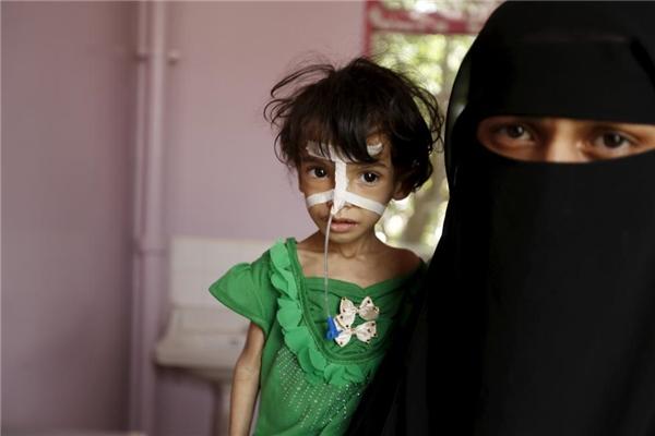 Một người phụ nữ giữ con gái bị suy dinh dưỡng của mình tại một bệnh viện ở thủ đô của Yemen Sanaa.