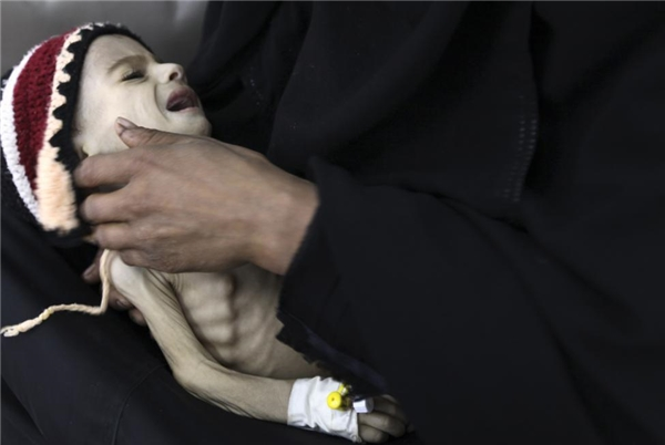 Xót xa hình ảnh em bé chỉ còn da bọc xương ở Yemen vì suy dinh dưỡng