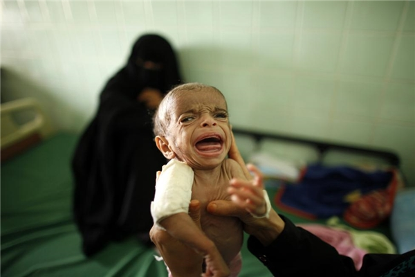 Một bác sĩ đang bếmột cậu bé bị suy dinh dưỡng ở thành phố phía nam của Yemen Taiz.