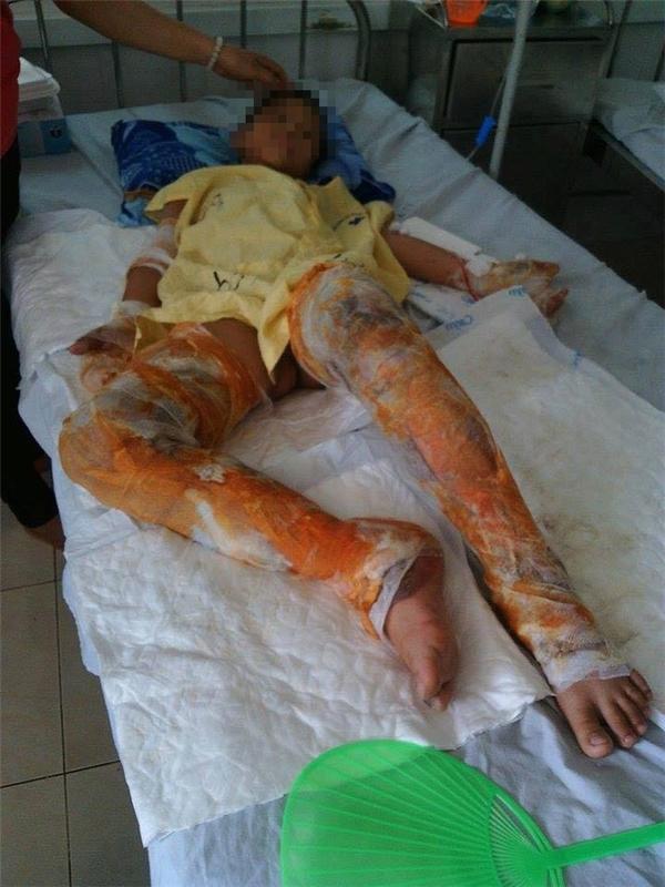 Em trai út của Hằng cũng đang nằm điều trị các vết bỏng rất nặng. Ảnh: Internet