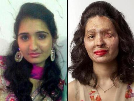Vụ tấn công axit đãkhiến gương mặt của Reshma bị hủy hoại nghiêm trọng và mất một bên mắt.
