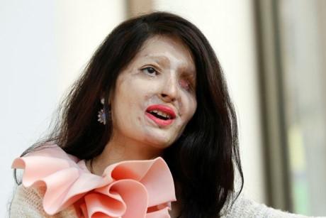 Hỏng hoàn toàn khuôn mặt, nạn nhân vụ tạt axit tự tin trên sàn catwalk