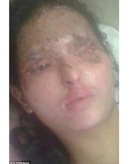 Reshmađã trải qua rất nhiều ca phẫu thuật ghép da và nhiều lần muốn tìm đến cái chết vì qua đau khổ vì gương mặt bị hủy hoại.