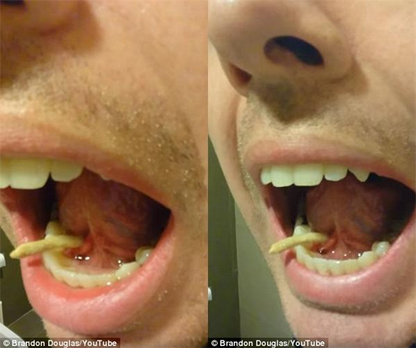 Nổi da gà cảnh chàng trai rút vật kì dị ra khỏi miệng
