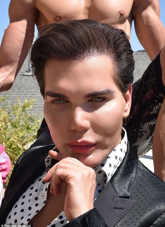 Chỉ sau 1tuần cấy tóc, Rodrigo đã nhận thấy sự thay đổi rõ rệt.
