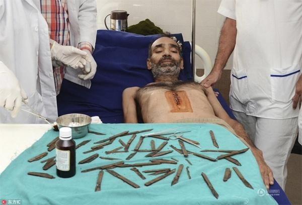 Hơn 40 lưỡi dao bịJarnail Singh nuốt vào dạ dày trong vòng 2 tháng