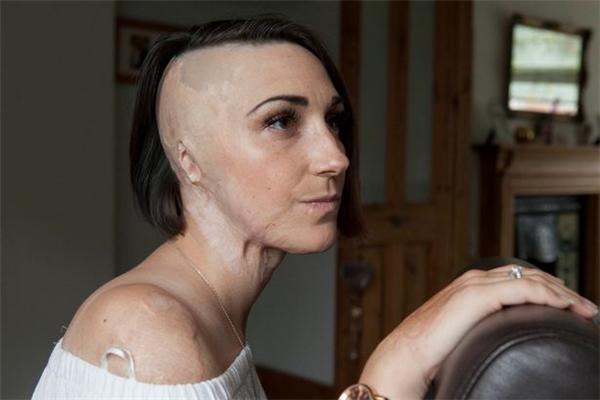 Giờ đây một bên đầu của cô đã bị sẹo vĩnh viễn không thể mọc tóc cũng như lỗ tai đã bị đốt cháy.