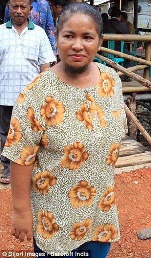 Suốt 20 năm ròng, bà mẹ này đã khổ sở che giấu sự thật về khuôn mặt mình chỉ vì lo cho con cái bị người ngoài bắt nạt.