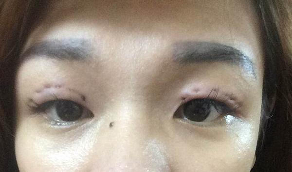Mí mắt sưng vù hay luồn chỉ bị lệch là hai trong những trường hợp gây xôn xao thời gian gần đây.