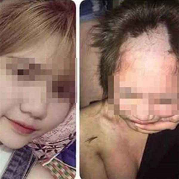 """Mái tóc của T. bị vợ người đàn ôngcắt trụi """"cho mày nhớ đời""""."""