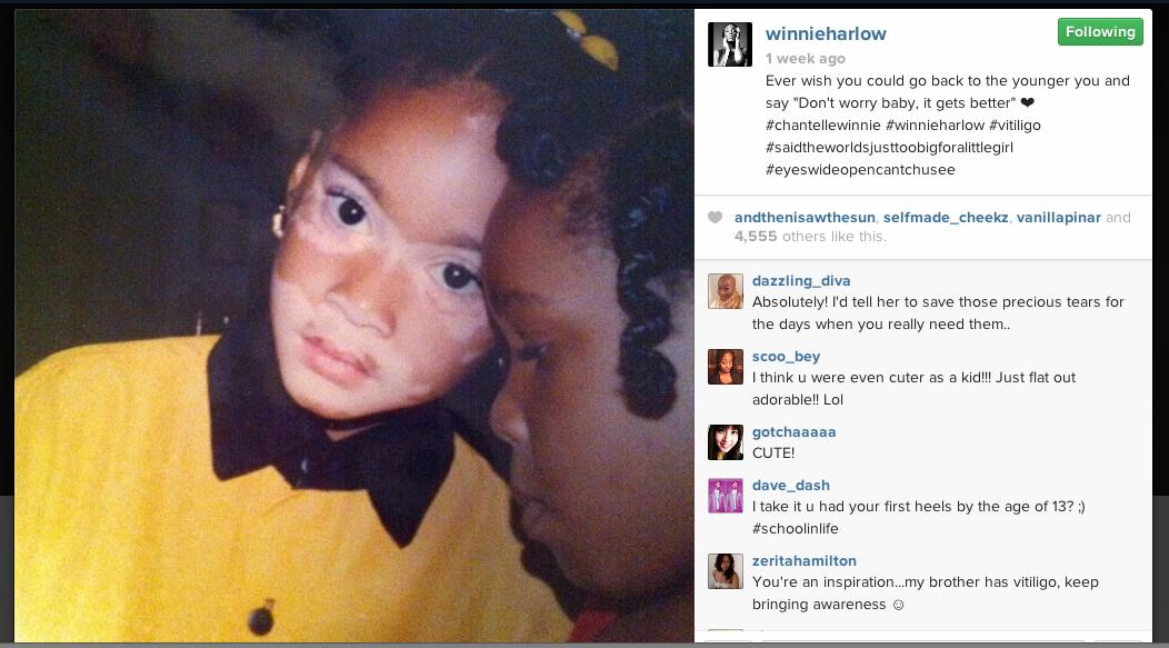 Cô nàng từng chia sẻ tuổi thơ bất hạnh của mình trên mạng xã hội.