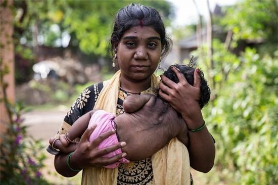 """Mẹ Manish22 tuổi cùng cậu con trai mắc hội chứng """"ma sói"""""""