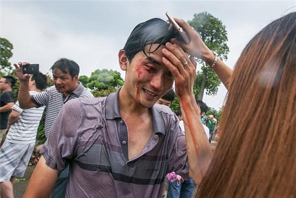 Một người dân bị thương vì bị cột sóng lớn đánh ngã   Dù bị ướt do sóng dâng cao, nhưng du khách vẫncảm thấy thú vị.