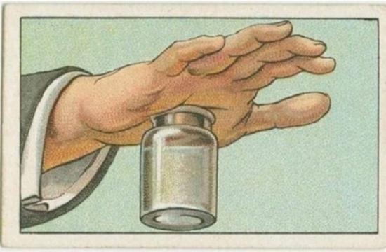 Áp lực hơi nước sẽ hút chặt da tay vào miệng bình đồng thờihút luôn cả gai nhọn hay mảnh vỡtrong vết thương.