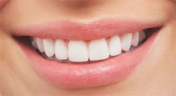 Đó là những gì bám trên răng chúng ta.(Ảnh: Internet)