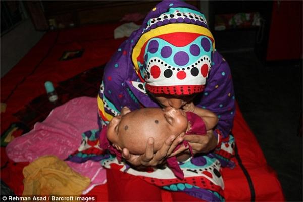 Ước mong của cả gia đình lúc này là có thể tiến hành phẫu thuật tách đầu cho con dù chi phí của nó là không hề nhỏ.