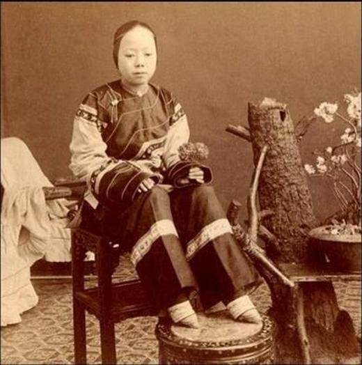 Ở Trung Quốc thời kì trước, những người phụ nữ có bàn chân và bắp chân to bị coi là xấu xí và thô thiển. Có lẽ cũng vì điều này mà tụcbó chân ra đời và trở thànhtruyền thống của phụ nữ Trung Quốc. Những cô gái với bàn chân được bó càng nhỏ càng chứng tỏ thân phận địa vị của họ càng cao. Mặc dùviệc bó ép đôichân liên tục và không được vệ sinh có thể đẫn đến nhiễm trùng song họ vẫn phải cố chịu đựng bởi việckết hôn có thànhhay không đều dựa vào bàn chân được bó nhỏ xíu này.