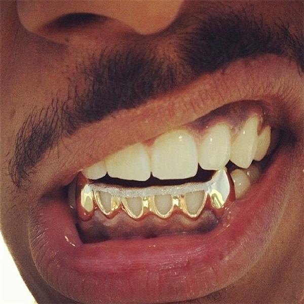 Vàng được gắn đến tận chân răng.(Ảnh: Internet)