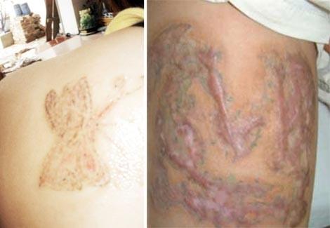 Nhiều tổn thương về da sau khi xóa hình xăm. (Ảnh Internet)
