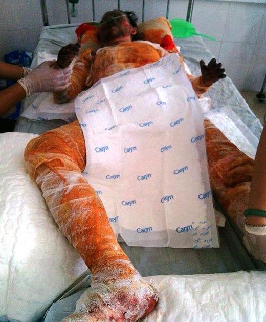Hai tay hai chân cô gái bị bỏng nặng, cháy đến sát xương.