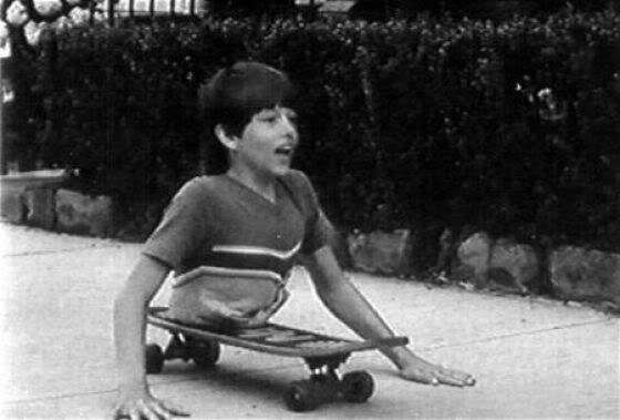 Kennyphải cắt bỏ đôi chân và dùng phần xương ống chân để tạo thành xương sống.