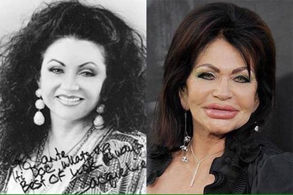Những gương mặt trước và sau khi chỉnh sửa bất thành.