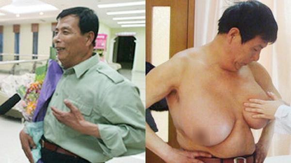 Choáng với lí do khiến ngày càng có nhiều đàn ông ngực to như phụ nữ