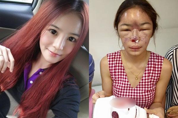 Hot girl Thái LanTawanrat Fah Chaiamnuay xinh đẹp trước khi phẫu thuật thẩm mĩvà hình ảnh tàn tạ sau khi đụng đếndao kéo.
