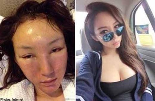 """Không bằng lòng với ngoại hìnhxinh xắn và vóc dáng chuẩn sẵn có của mình, hot girl Chen Yi Man thực hiện phẫu thuật thẩm mĩ và kết quả là khiến cho khuôn mặt """"xuống cấp"""" trầm trọng."""