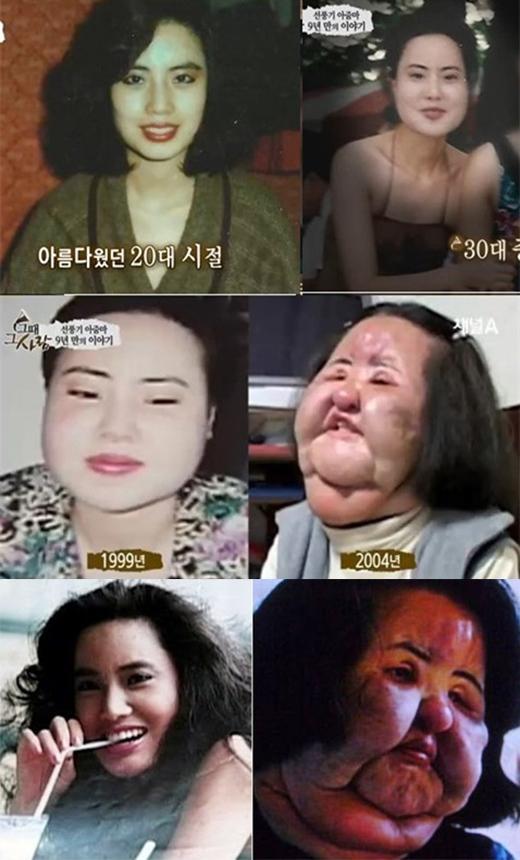 Sau hơn 20 lần lên bàn phẫu thuật thẩm mĩ chỉnh sửa khuôn mặt, nữ ca sĩ Han Min Ok đã phải gánh chịu gương mặt phù nề biến dạng đến đáng sợ.