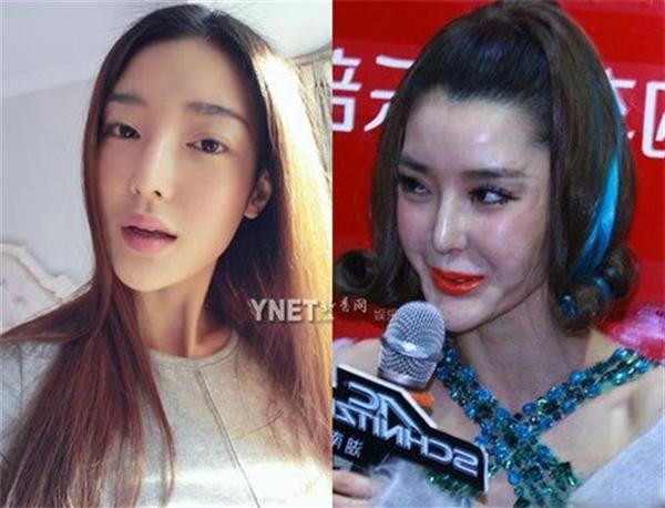 Ham đẹp như gái Hàn, hàng loạt phụ nữ khóc hận vì phẫu thuật hỏng