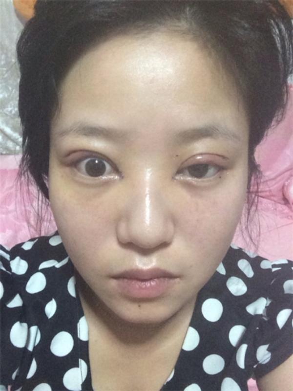 Những đôi mắt lệch vô hồnkhông thể nhắm lại thật khiến người ta không khỏi đau lòng.