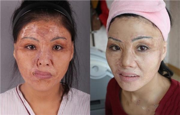 Cả làn da đều bịhỏng do botox.