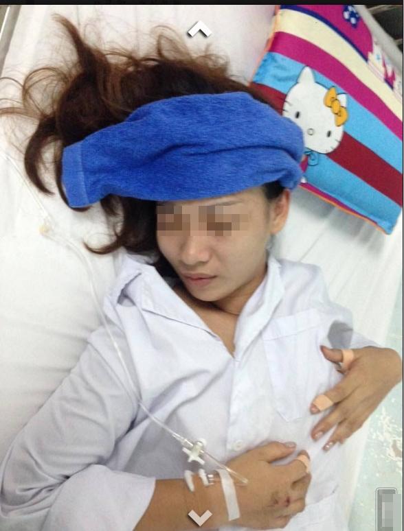 Cô gái trẻ hiện đang điều trị tại khoa chấn thương chỉnh hình của một bệnh việnHà Nội.