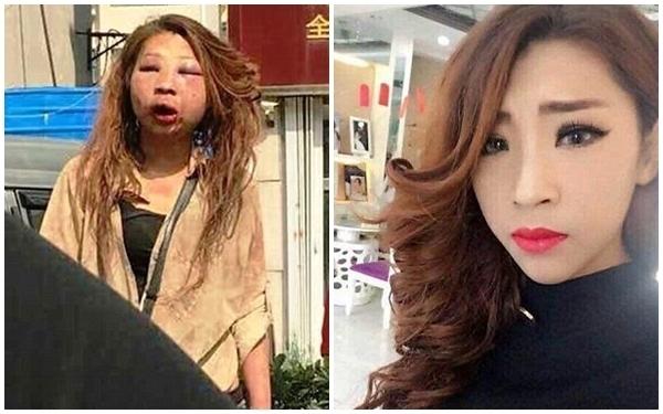 Gương mặt cô gái xinh đẹp gần như biến dạng hoàn toàn sau vụ đánh ghen.