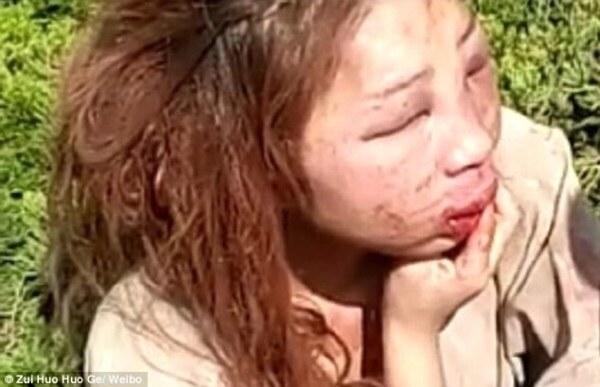 Kết cục ba má nhận không ra của hot girl sau một vụ đánh ghen