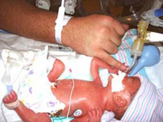 Y học tiến bộ đã cứu sống đứa bé từ một người mẹ chết nãovài tháng.