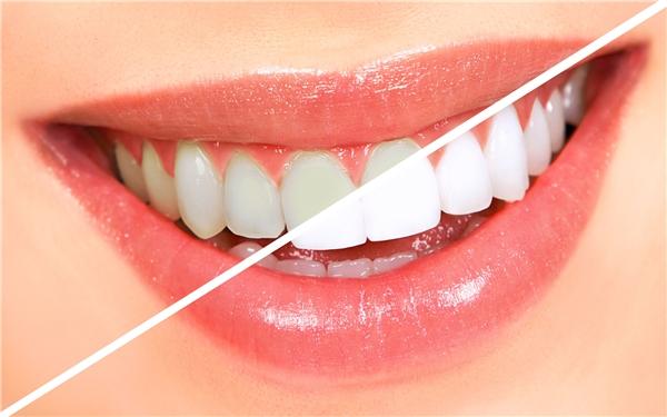 Ngoài làm trắng răng, dầu dừa còn giúp răng bạn chắc khỏe hơn. (Ảnh: Internet)