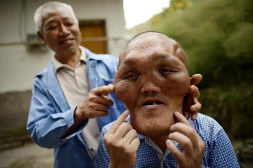 Ông Yuanhai giờ phải sống nương nhờ vào anh của mình.